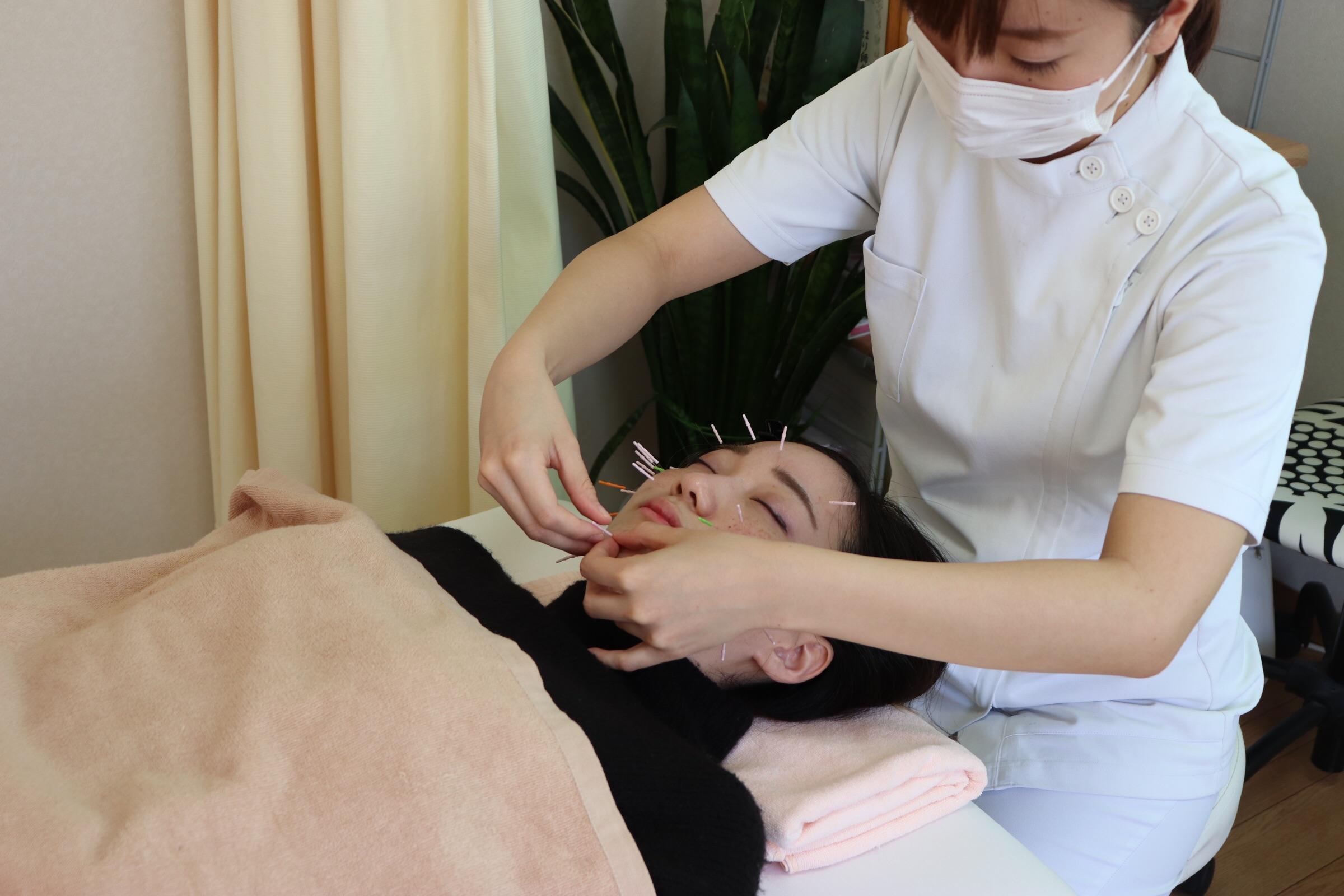美容鍼の施術中