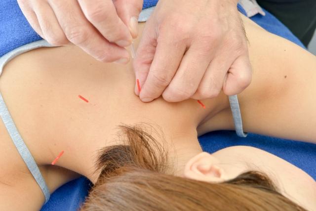 鍼灸,効果